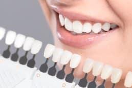 dental-esthetics